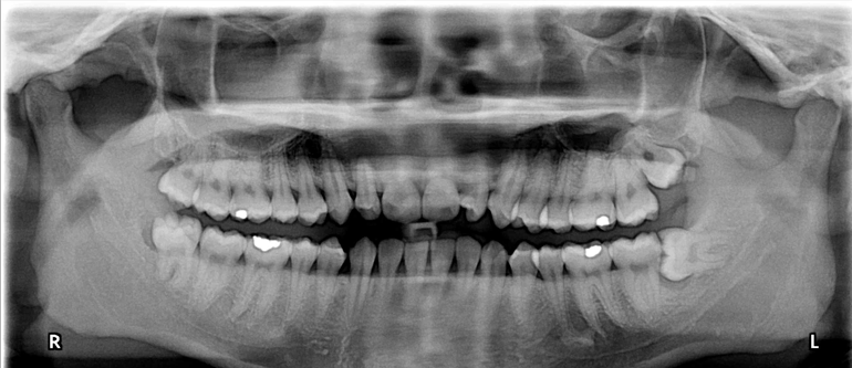 Wisdom Tooth Extraction Malpractice Claims